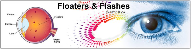 Floaters Flashes
